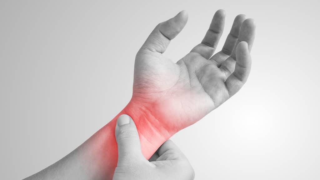 syndrome du canal carpien douleur